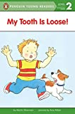 My Tooth Is Loose! 302語