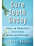 「Cure Tooth Decay: Heal And Prevent Cavities With Nutrition - Limit And Avoid Dental Surgery and Fluo...」のサムネイル画像
