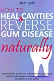 「How to Heal Cavities and Reverse Gum Disease Naturally: a science-based, proven plan to heal teeth a...」のサムネイル画像